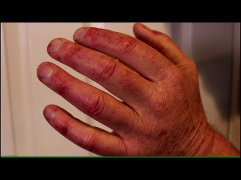Red Spots and Sore Fingers from TOS
