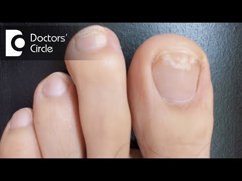 What causes white spots on toenails? - Dr. Aruna Prasad