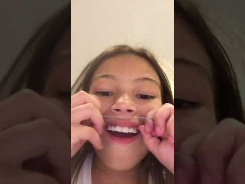 How to do fake braces with rubber band