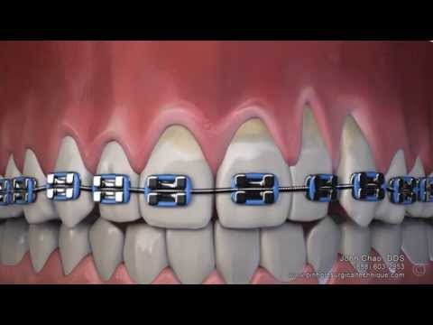 Gum Recession After Wearing Braces Can Now Be Treated Without Gum Grafting Surgery