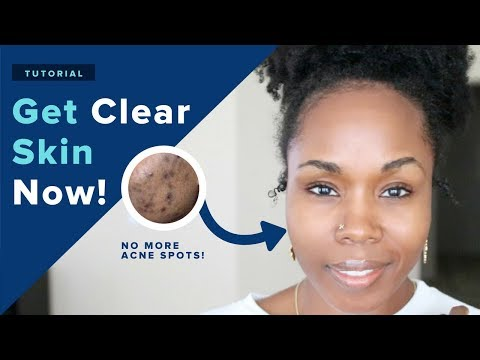 Get PERFECT CLEAR Skin in 1 Week NATURALLY! | 18 DIY Hacks That REALLY Work + CONTEST