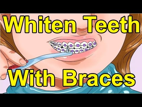 How To Whiten Teeth With Braces | Tips To Learn How To Whiten Teeth With Braces