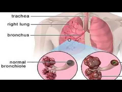 How to Reverse COPD Damage in Lungs with this Plant Compound?@
