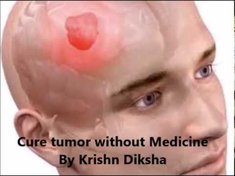 Cure Tumor/Rasoli without Medicine by Krishn Diksha