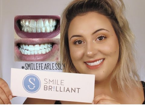 How I Whiten My Teeth At Home + GIVEAWAY | Ashley Chadwick