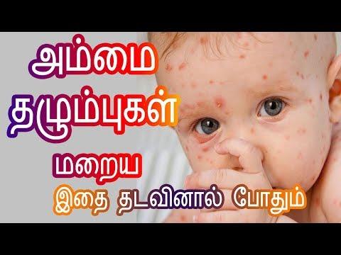 அம்மை தழும்பு மறைய - How to remove Chicken Pox Marks/Scars in Tamil - Tamil Beauty Tips - Small Pox