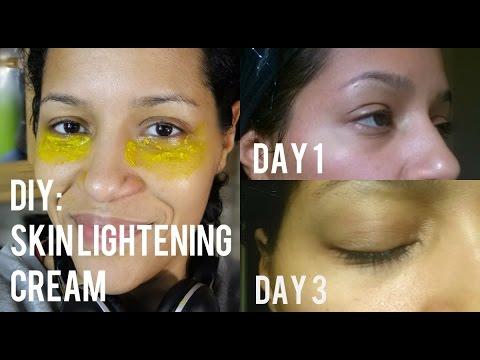 DIY: Natural Skin Lightening Cream to Get Rid of Dark Circles