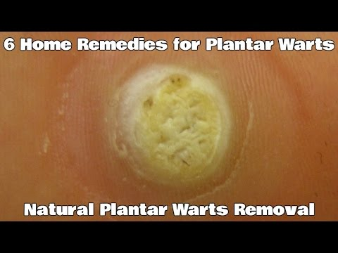6 Home Remedies for Plantar Warts - Natural Plantar Warts Removal
