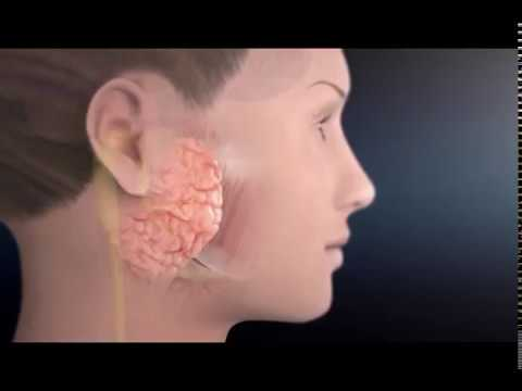 TMJ Treatment - Non Surgical - A Holistic Approach