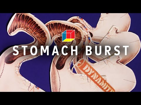 Could You Eat So Much That Your Stomach Explodes?
