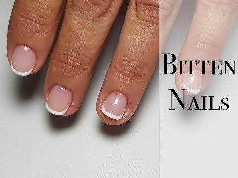 Bitten nails/ Problem cuticle