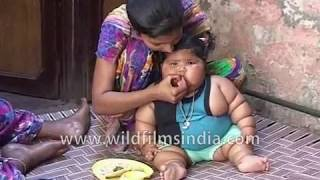 Eight month old baby from Punjab weighs 17 Kg