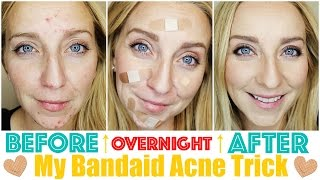 How To Get Rid Of Acne Fast Overnight With My Bandaid Trick