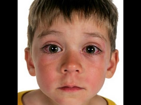 Home Remedies for Pink Eye Video