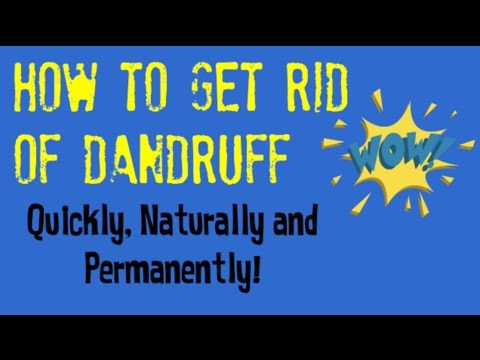 How to Get Rid of Dandruff Today! | Quick Tips for Getting Rid of Dandruff Naturally
