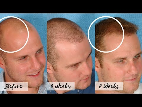 CURE FOR BALDNESS - Stop the Receding Hairline - Natural Hair Regrow Treatment