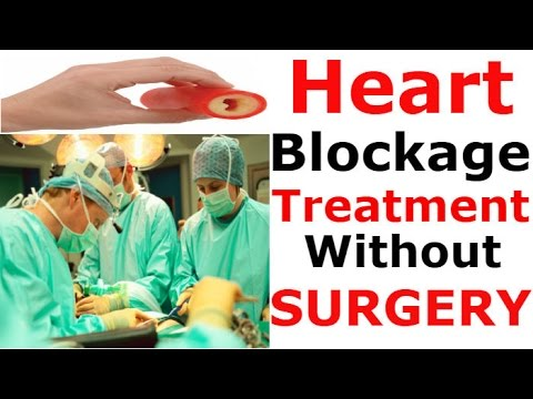 Heart blockage treatment without surgery | Natural Home Remdies As Medicine For ANGIOPLASTY
