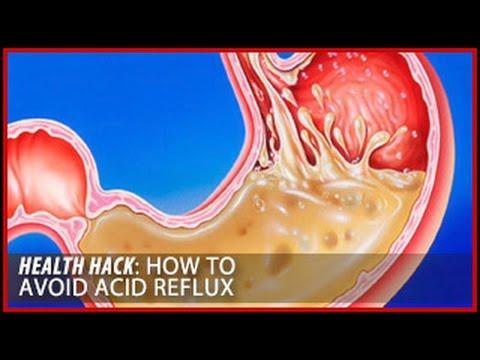 How to Avoid Acid Reflux: Health Hacks- Thomas DeLauer