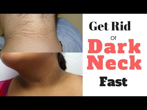 How To Get Rid Of Dark Neck 🛩Fast - How To Get Rid Of Dark Neck & Lighten Black Neck Naturally