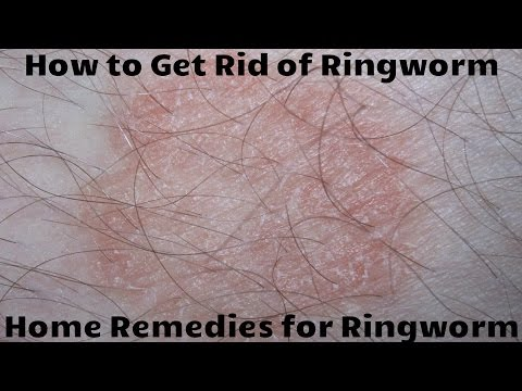 How to Get Rid of Ringworm - Home Remedies for Ringworm