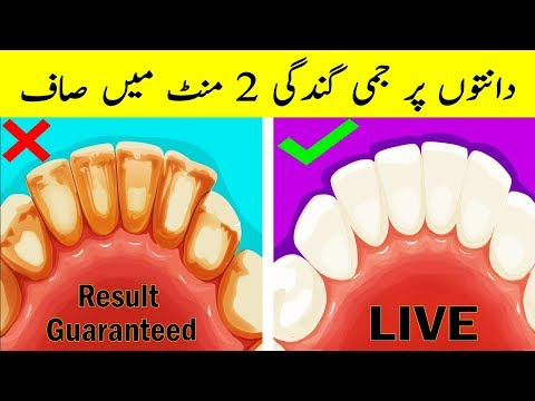 Remove Tartar and Dental Plaque Naturally | Get White Teeth Naturally | Aisha Health With Beauty