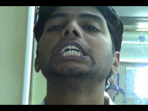 BUCK TEETH CORECTED IN 3 MINUTES IN INDIA WITH ASTHETIC DENTAL ACUPUNCTURE