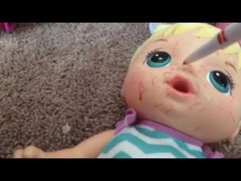 Baby alive fake chickenpox 1