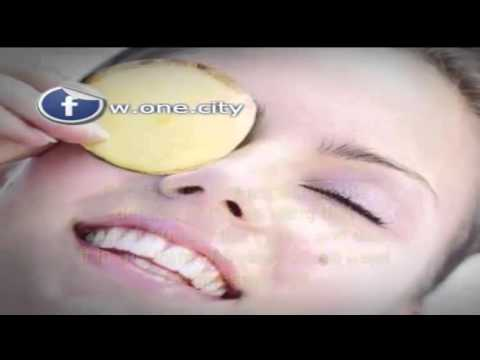 Potatoes for swelling of the eyelids
