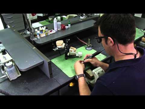 Wie wird eigentlich eine Zahnkrone hergestellt