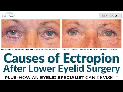 Causes of Ectropion after Lower Eyelid Surgery, and Possible Restoration by an Eyelid Specialist