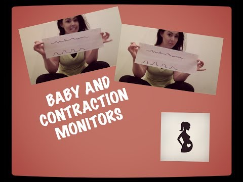 Baby and Contraction Monitors