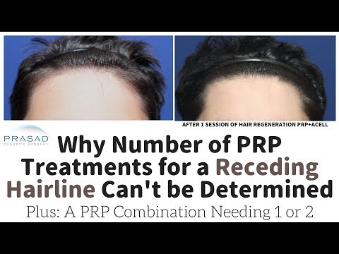 Why Number of PRP Sessions for Hair Loss Can't be Predicted, and a Treatment that Takes 1 or 2