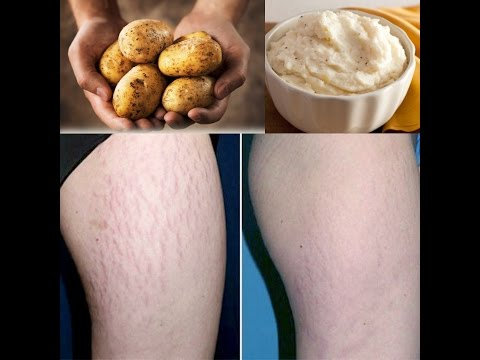 How to Remove Stretch Marks | How to Get Rid Of Stretch Marks in a Week
