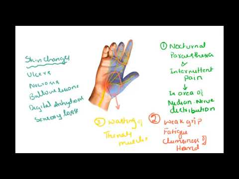 Carpal tunnel syndrome - Causes,signs, symptoms, treatment, surgery, non-surgical prevention