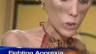 Download Anorexia's Childhood Roots (CBS News) Video