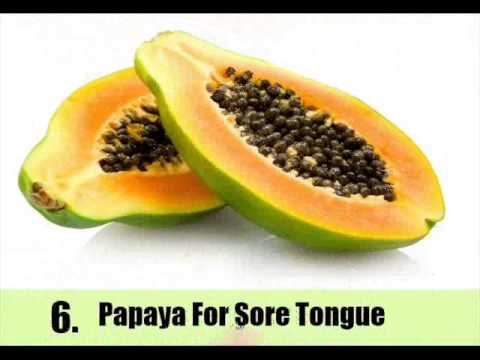 Suffering From Sore Tongue ? Try 11 Best Natural Treatments For Sore Tongue