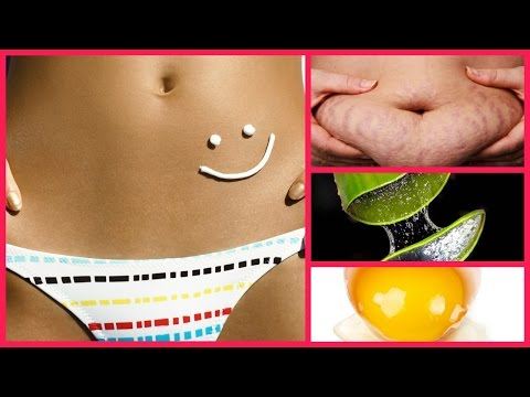 How to Get Rid of Stretch Marks Fast and easily / Pregnancy Stretch Marks Removal Home Remedies