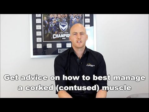 Corked bruised muscle advice by a Sports Physiotherapist Adelaide