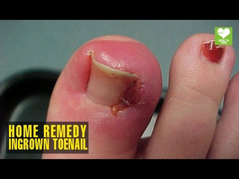 Home Remedies To Get Rid Of Ingrown Toenail | Health Tips | Educational Video