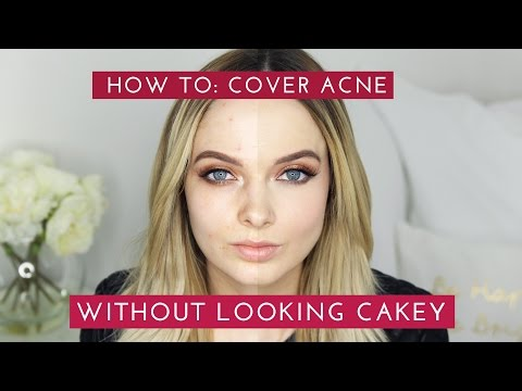 HOW TO: COVER ACNE & SCARS WITHOUT LOOKING CAKEY // MyPaleSkin