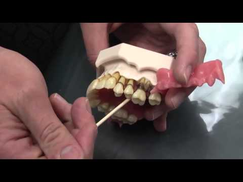 Periodontal Diseases treatment