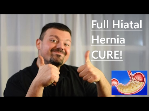 Hiatal hernia full cure UPDATE