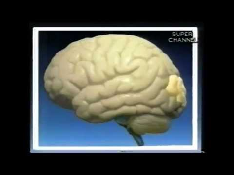 How does an electroencephalograph (EEG) work?