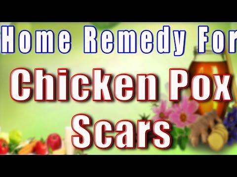 Home Remedy for Chicken Pox Scars II  चेचक के दानो के दागो का घरेलू उपचार  II