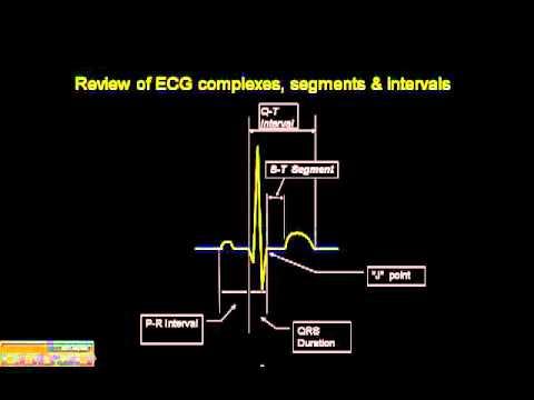 12-15 Lead ECG: Review of ECG Complex