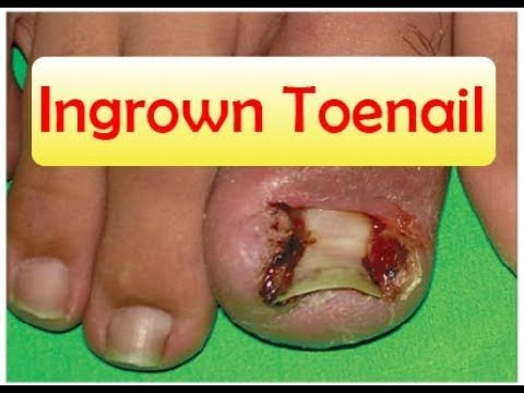 How to Get Rid of Ingrown Toenails Quickly | How to Get Rid of Ingrown Toenails Fast Home Remedies