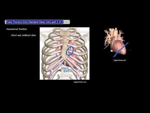 Trans-thoracic Echo Standard Views Intro part 2 of 2 [UndergroundMed]