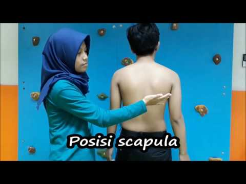 Scoliosis and exercise