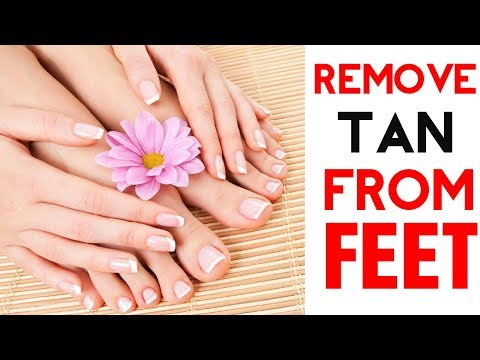 5 Amazing Ways To Remove Tan From Feet Naturally At Home