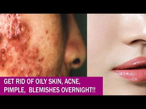 How to get Rid of Acne (PIMPLES), Oily Skin & Blemishes Overnight Fast - 3 Remedies to remove Acne